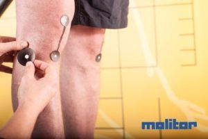 Ein Knie welches zur Laufanalyse mit Trackingpunkten ausgestattet wird.